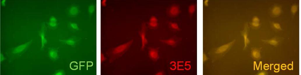 Immunofluorescence on transfected HeLa cells (pLEGFP-C1-hV5p) using anti-Vamp5 [3E5].