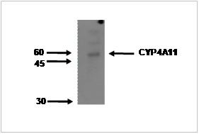 Image for Anti-Cytochrome P450 4A11 [M25-P2A10]