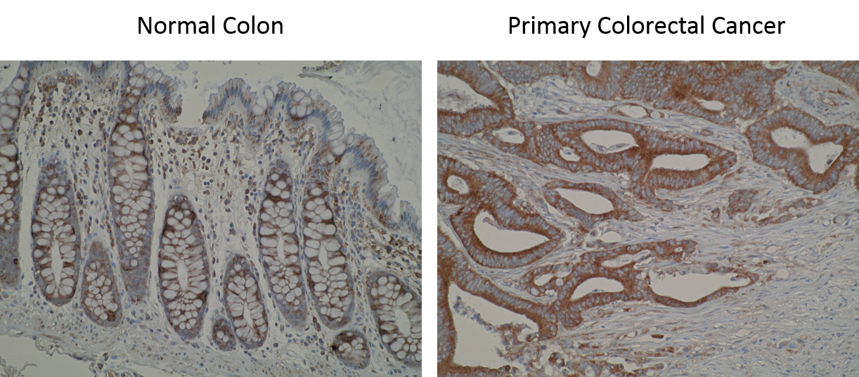 Immunohistochemistry photos are showing immunostaining of Anti-SLA2 [Z30P1F12*F4] in normal colon mucosa and primary colorectal tumour. A variation of immunostaining intensity between cases is observed.