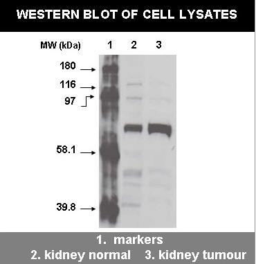 Western Blot of cell lysates