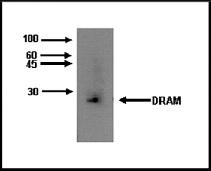 Image for Anti-DRAM1 [M3-P4B4]