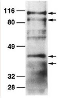 Western blot analysis of mouse primary osteoblasts probed with whole ADAM19 antiserum at a 1:500 dilution.