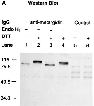 Western blot analysis using Anti-ADAM15
