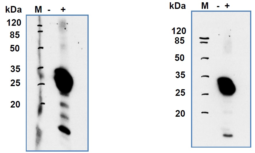 Western blotting was performed using 10ug of lysate prepared from HEK-293FT cells transfected with pXJmyc-SARS NSP8 (+) or 10ug of lysate prepared from mock-transfected cells (-).