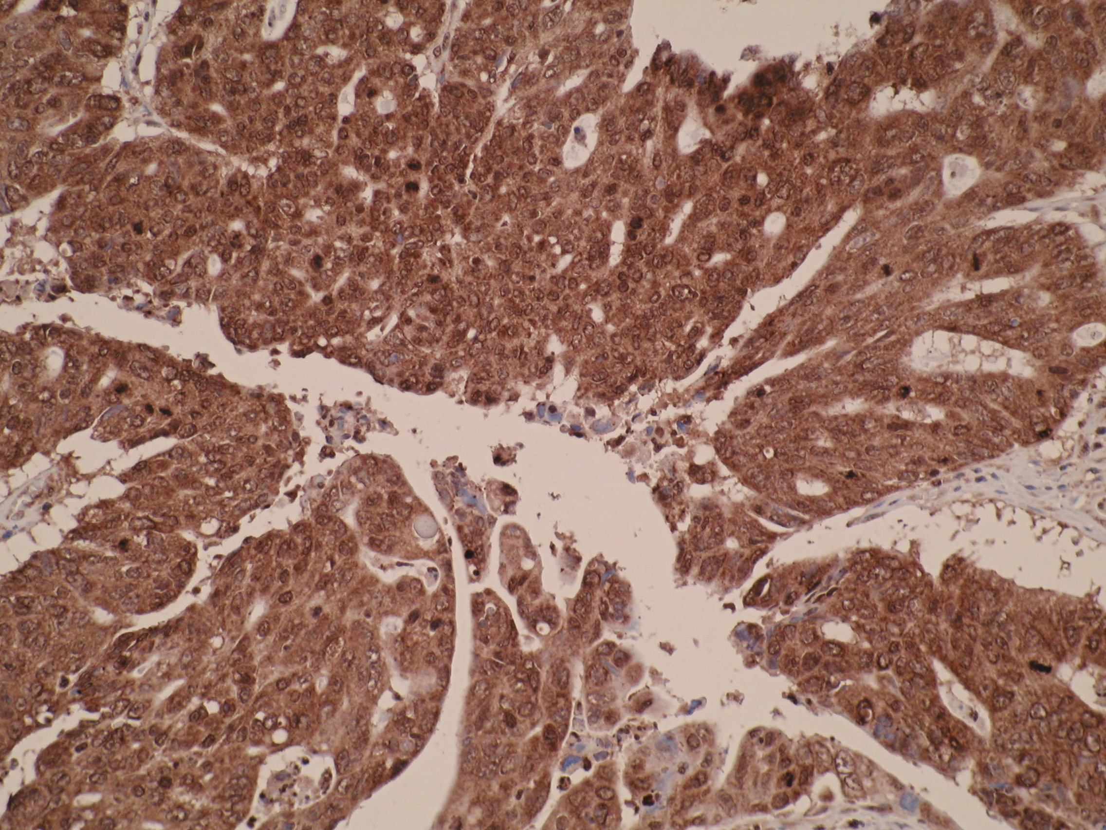 Immunohistochemistry was performed on formalin-fixed, paraffin-embedded colorectal cancer tissue sections using anti-TMEM2L [V98P4E1*B7] antibody. Strong cytoplasmic and nuclear staining were detected.