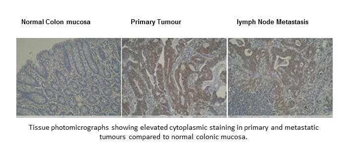 Immunohistochemistry was performed on formalin-fixed, paraffin-embedded tissue normal colon mucosa, primary tumour and lymph node metastasis sections using anti-DRAM-1 [M3-P4B4].
