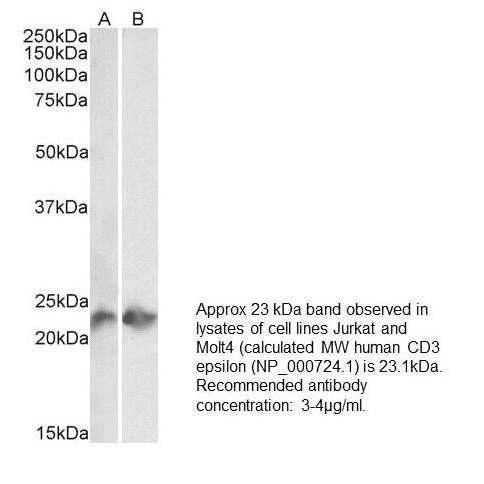 Western Blot staining of Jurkat (A) and Molt4 (B) lysates (35 µg protein in RIPA buffer) using anti-CD3, Recombinant [UCH-T1] (3 µg/ml) . Primary incubation was 1 hour. Detected by chemiluminescence.