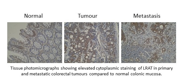 Immunohistochemistry was performed on formalin-fixed, paraffin-embedded normal, primary and metastatic colorectal tumour tissue sections using anti-LRAT [M34-P1F10]. No antigen retrieval step was required.