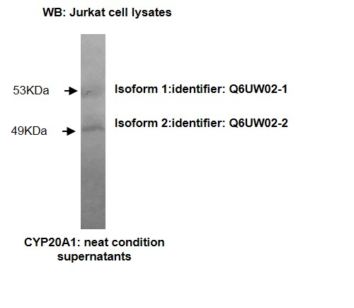 Western blotting was performed on Jurkat cell lysates using anti-CYP20A1 [Z27-P3H7*E3] Isoform 1 (53kDa) and Isoform 2 (49kDa) of Cytochrome P450 20A1 were detected.