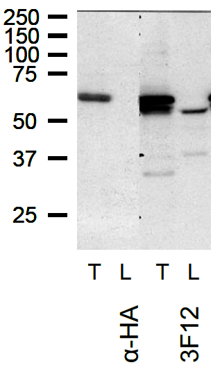 Western blot performed on lysates prepared from HeLa cells transfected with HA-TOM1L1 (full length) (T) and HeLa cells (L) using anti-TOM1L1 [3F12]