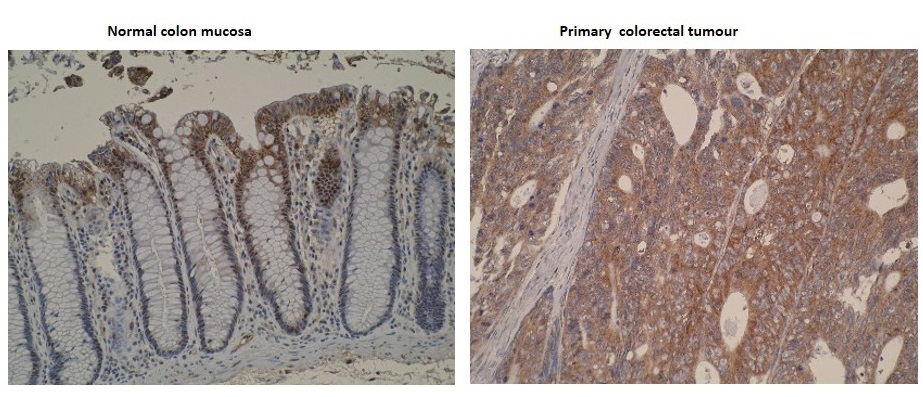 Immunohistochemistry was performed on formalin-fixed, paraffin-embedded normal and primary colorectal tumour tissue sections using neat culture supernatants of anti-CYP4F11 [F21 P6 F5]. The photomicrographs show much stronger immunostaining of in primary colorectal tumour compared to normal colon mucosa. Cytoplasmic localisation of CYP4F11 is also observed.