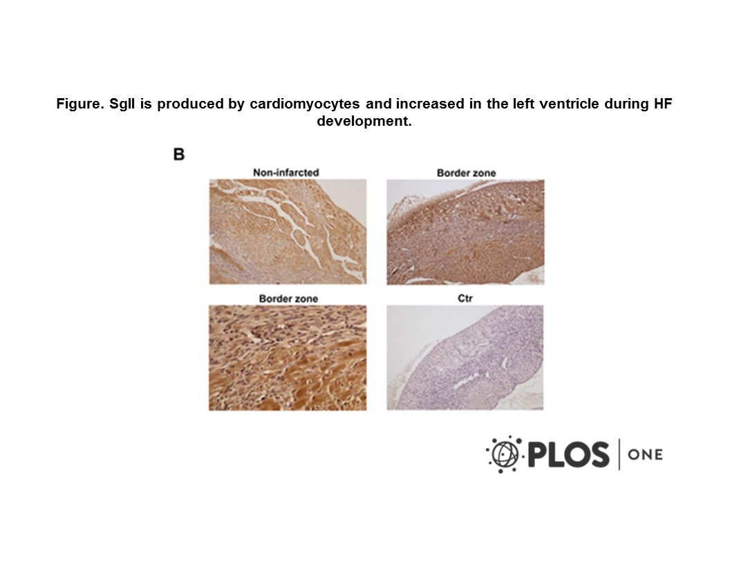 Adapted from Røsjø et al. 2012. PLoS One. 7(5):e37401. PMID: 22655045. Figure. SgII is produced by cardiomyocytes and increased in the left ventricle during HF development. B, Representative photomicrographs of myocardial tissue sections of a HF mouse demonstrating SgII immunoreactivity (brown staining) in cardiomyocytes of the non-infarcted LV (upper left image). Images of the area bordering the infarcted zone (border zone) are presented in the upper right image (magnification: ×100) and the lower left image (magnification: ×400) and demonstrate SgII immunoreactivity also in non-cardiomyocyte cardiac cells, including fibroblasts. In the upper right image, the infarct area is seen on the left side with granulation tissue in between non-infarcted tissue in the center. Bottom right picture demonstrates very weak staining after use of non-immune rabbit serum as control (ctr). Magnification: ×100 except lower left image (×400).