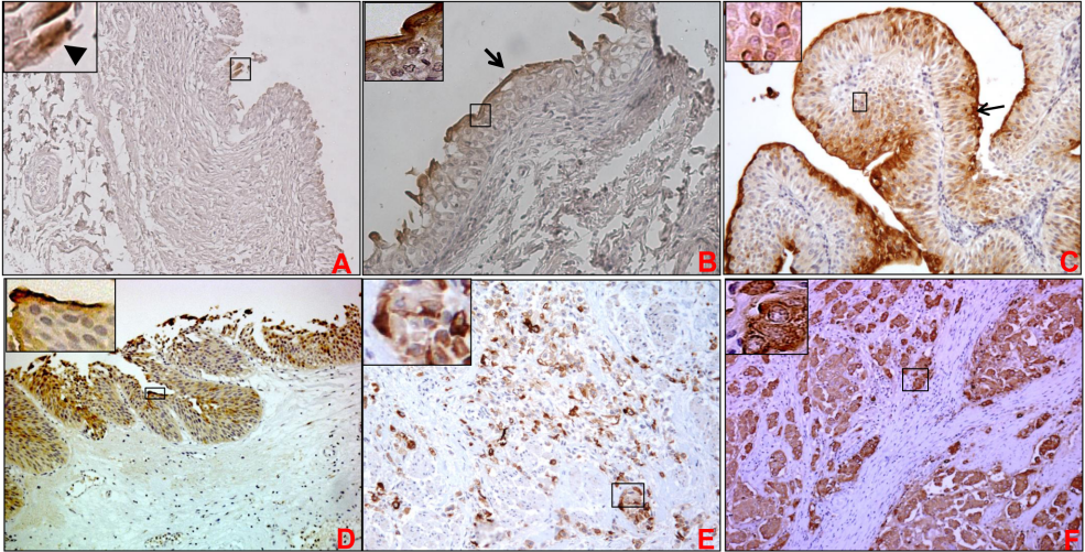 Expression of MUC1 in non-neoplastic bladder urothelium, non-invasive papillary urothelial carcinoma, urothelial carcinoma in situ and invasive high grade urothelial carcinoma. Bladder tumor tissue sections or spots were probed with anti-MUC1 mAb (HMFG2) after non-specific blocking with horse serum. All sections were examined under microscope and the immunoreactivity was evaluated by reddish brown staining. Representative photomicrographs are shown for MUC1 stained non-neoplastic bladder urothelium (A&B), low-grade papillary carcinoma (C), bladder carcinoma in situ (D), and high grade invasive cancer (E&F). In normal bladder urothelium, MUC1 expression was restricted to umbrella cells (shown by arrowhead in panel A and the magnified inset) in majority of samples. In some samples, a sheath of MUC1 mucin was observed over urothelium (arrow in 1B). In low-grade papillary carcinoma, intense staining of MUC1 was observed on the luminal surface of the urothelium and lower intensity of staining was observed in the other layers of urothelium (C). In urothelial carcinoma in situ, MUC1 expression was observed in all the layers of urothelium, however, staining was comparatively stronger in cells closer to the luminal border (D). In invasive high grade urothelial carcinoma, MUC1 staining was observed in cells invading singly (E) or as small groups within the lamina propria (F). Taken from PLoS One. 2014 Mar 26;9(3):e92742. doi: 10.1371/journal.pone.0092742. eCollection 2014.