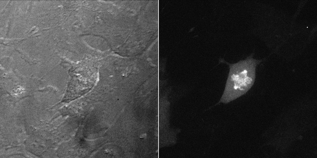 Cyclin B1-Venus Reporter Cell line [RPE1 cycB1-venus/+ KI clone 20G11] Metaphase, example 1