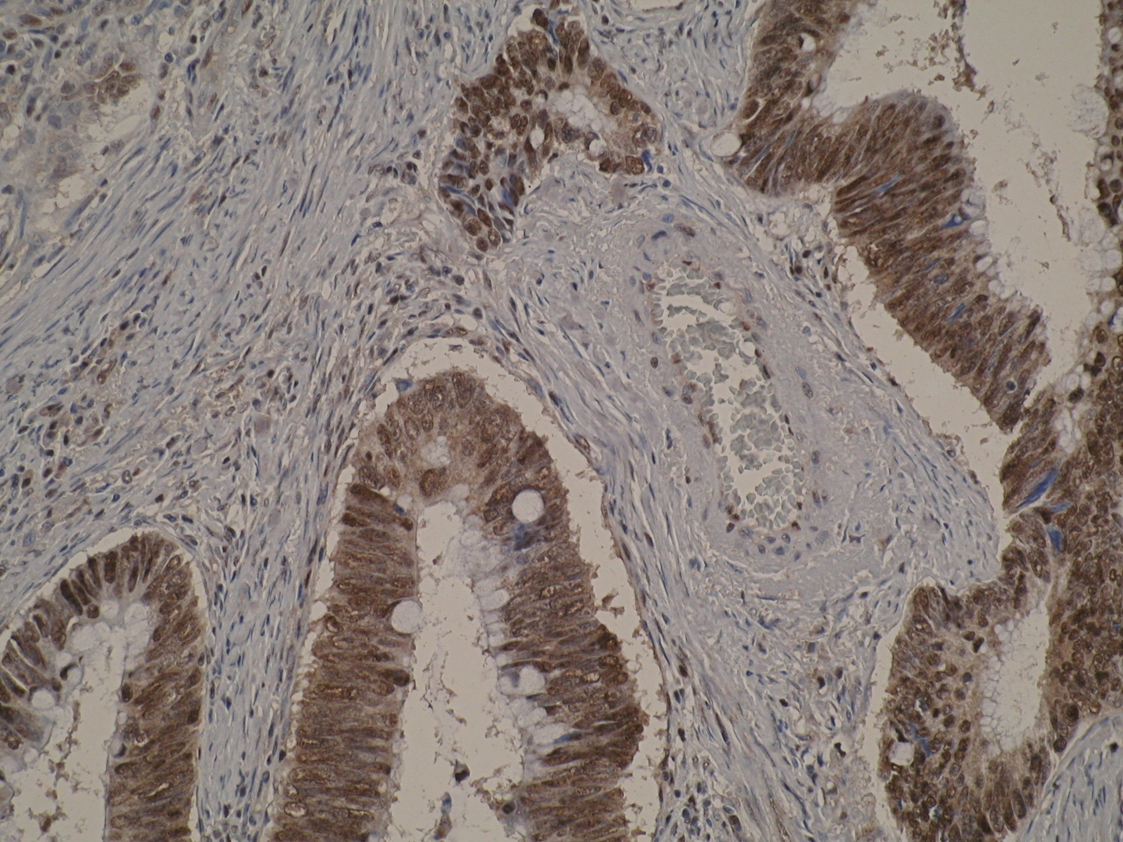 Immunohistochemistry was performed on formalin-fixed, paraffin-embedded tissue sections using Anti-BCLAF1 [M33-P5B11]. Image is showing both cytoplasmic and nuclear localisation positivity of BCLAF1 in colon cancer which is in agreement with existing literature. Exclusively nuclear localisation of BCLAF1 is observed in non-neoplastic colon mucosa. Antigen retrieval step was required (microwave 10 min @ 950W in 0.01M sodium citrate buffer, pH 6.0).