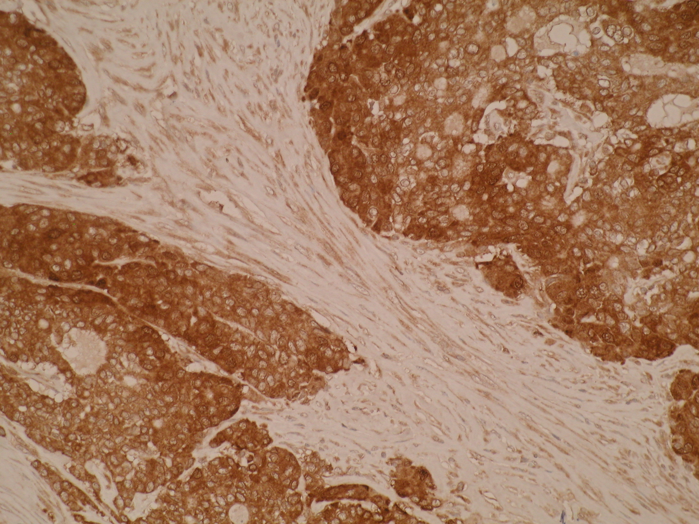 Immunohistochemistry of formalin-fixed, paraffin-embedded human colorectal cancer tissue using anti-GCSP [Z44P4C6*F5] showing strong cytoplasmic staining.
