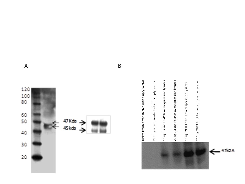 Western blot analysis of FoxP3a protein. A) Total leukocyte protein was isolated and resolved using SDS-PAGE and detected using rabbit polyclonal anti-FoxP3. B) Jurkat and 293T cells were transfected with A  pCDNA containing the zebrafish FoxP3a gene. Twenty four hours later cells were lysed and detected using Western blotting with antibodies to FoxP3.