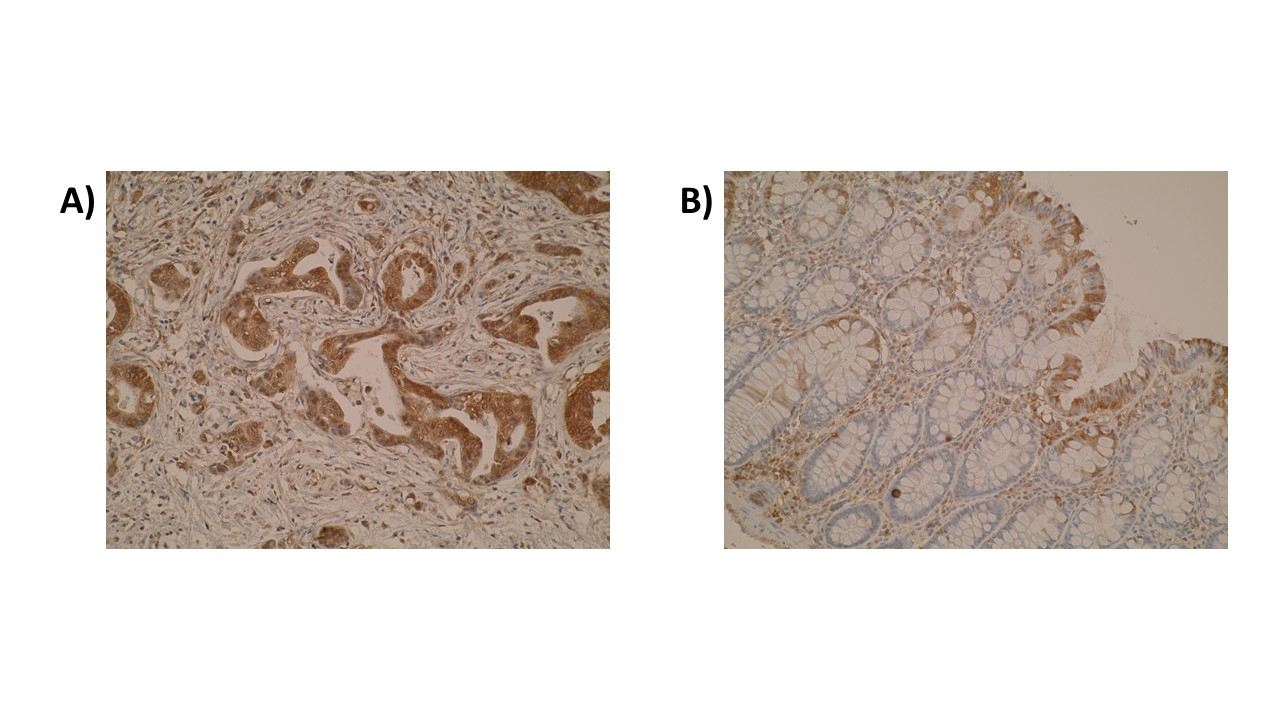 Figure. Immunohistochemistry was performed on primary colorectal tumours (A) and compared to normal colon mucosa (B) using anti-DIAPH2 antibody [V78P3C10*D3]. Cytoplasmic localisation of DIAPH2 was observed.