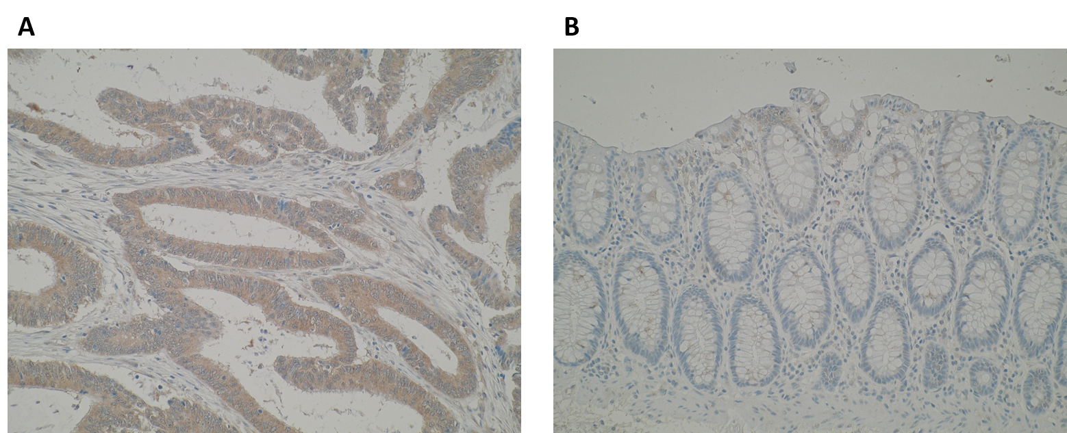 Immunohistochemistry images are showing a stronger cytoplasmic staining of ERO1LB in (A) primary colorectal cancer compared to (B) normal colon mucosa using Anti-ERO1LB [M37-P5D11]. IHC was performed on formalin-fixed, paraffin-embedded tissue sections. Antigen retrieval step is required (microwave 10 min @ 950W in 0.01M sodium citrate buffer, pH 6.0).
