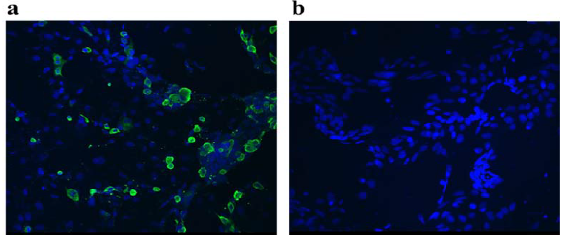 Immunofluorescence staining of cos7 cells transfected with a plasmid containing a full-length CXCL16 open reading frame (a). 48 hours post transfection cells were fixed with 4% paraformaldehyde permeabilised with 0.1% Triton X-100 and stained using Anti-CXCL16 [4.4] and followed by secondary goat anti-mouse FITC (1:100). Nucleic acid DAPI counterstain is shown in blue. A negative control mock is also shown (b).