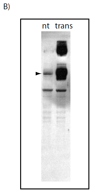 Western blot using HEK293 lysates either non-transfected (nt) or transfected (trans) with HA-tagged human Atg9. Arrowhead indicates position of human Atg9 at 105 KDa.