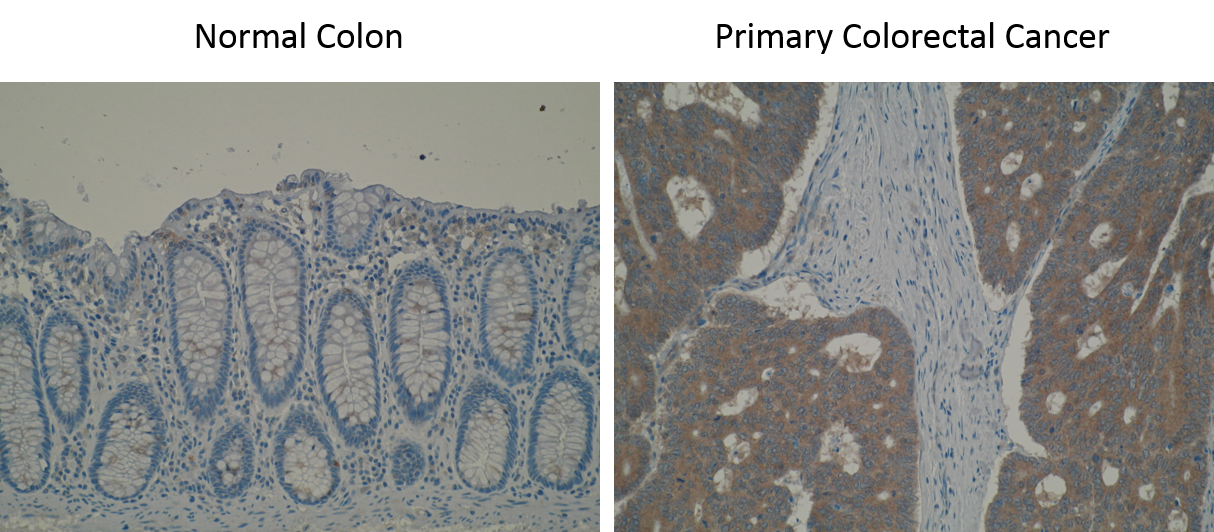 Immunohistochemistry images are showing a strong positivity of BAG3 in primary colorectal cancer whilst negative staining observed in normal colon mucosa using Anti-BAG3 [V65P1E8*D2]