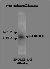 Image for Anti-ERO1-Like Beta [M37-P5D11]