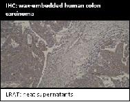 Image for Anti-LRAT [M34-P1F10]