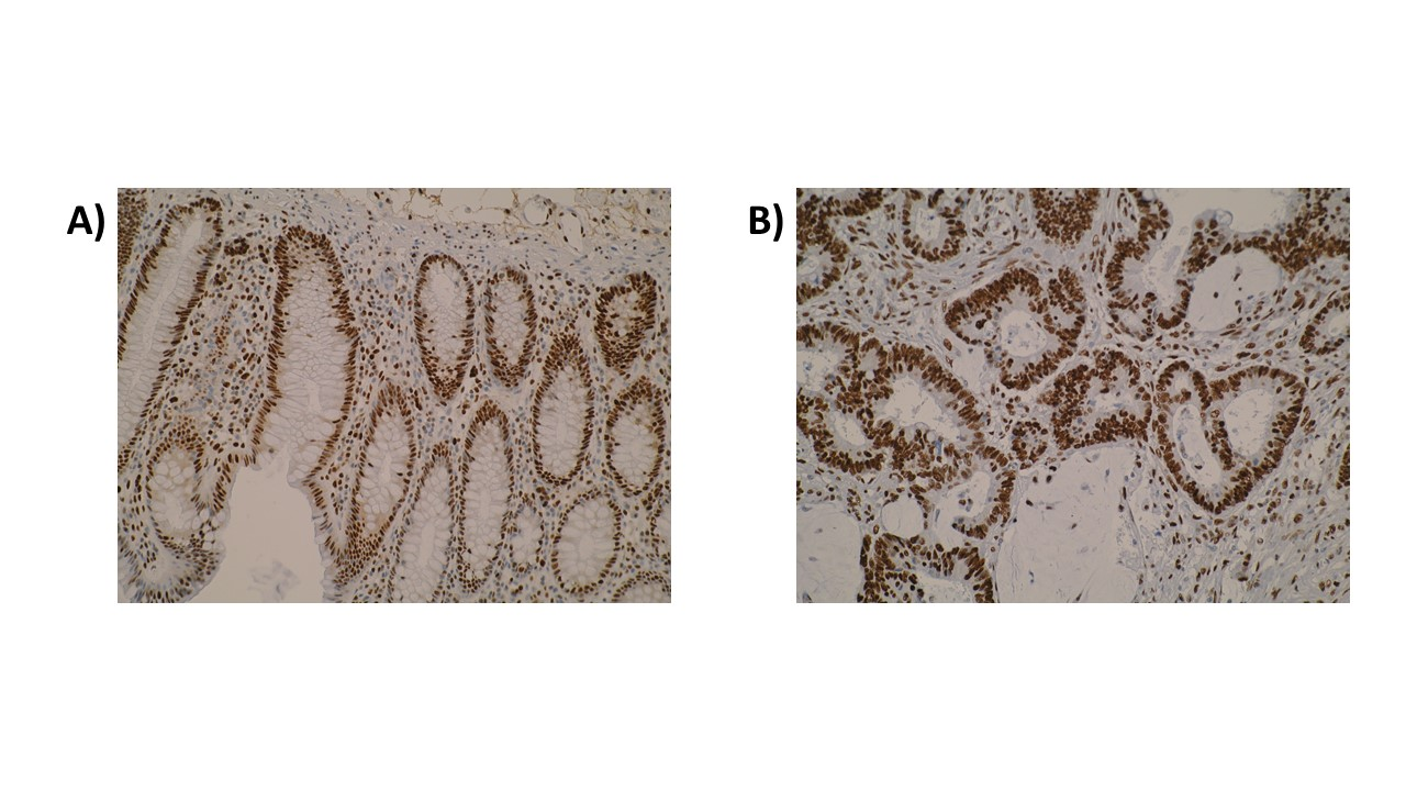Figure. Immunohistochemistry was performed on normal colon (A) and primary colorectal tumour (B) tissue using anti-SPATA2L [Z2P2D5*C8]. Cytoplasmic localisation of SPATA2L was observed in a subset of colorectal tumours.