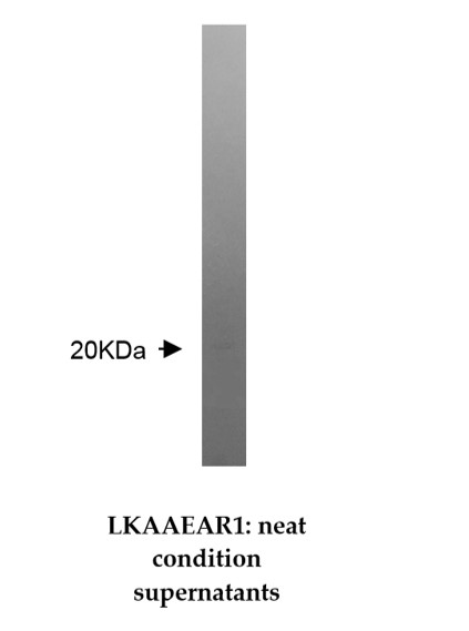 Western blotting was performed on Jurkat cell lysate using anti-LKAAEAR1 [Z36P2C1*E7].  A 20kDa protein was detected.