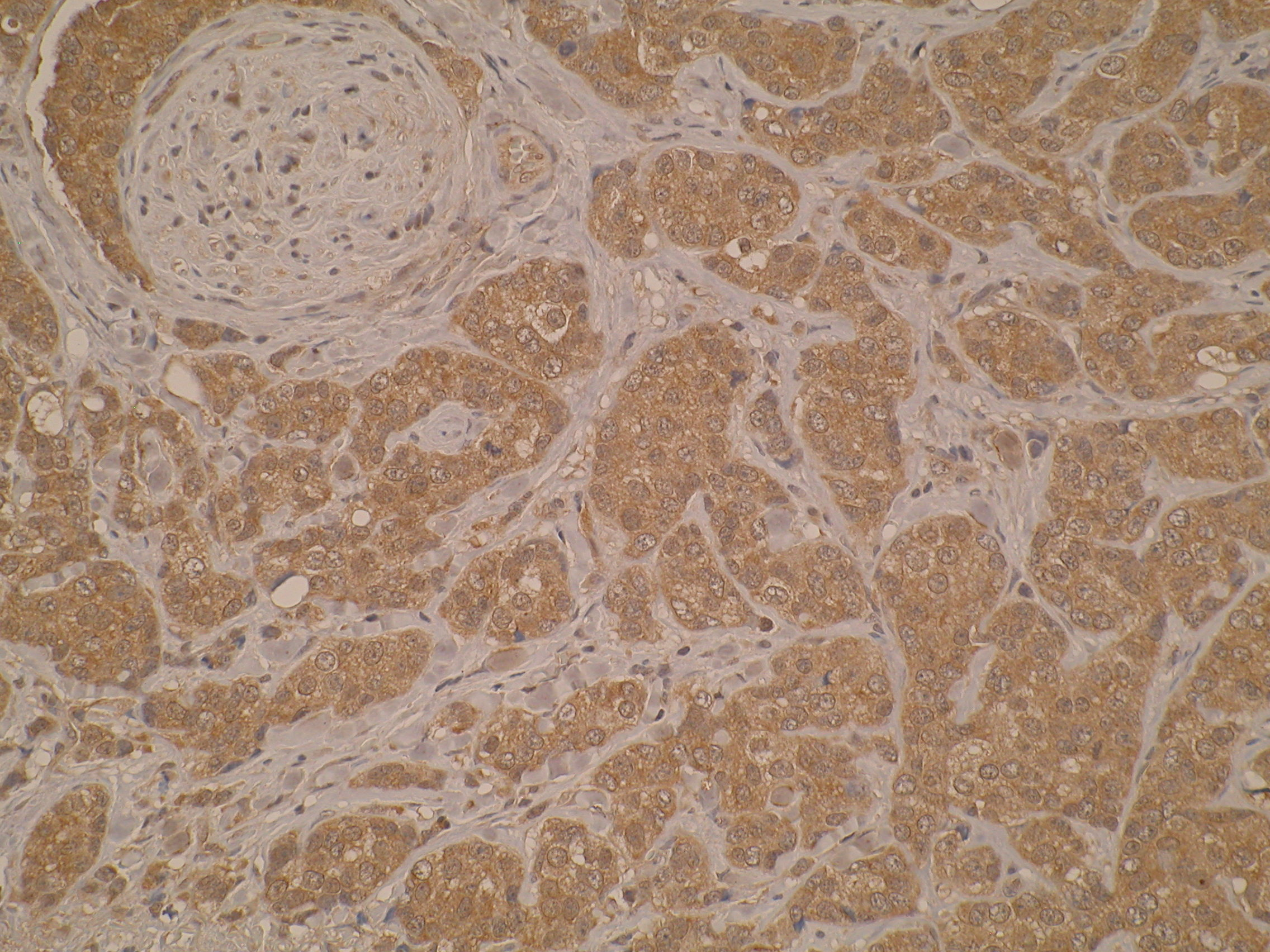 Immunohistochemistry was performed on formalin-fixed, paraffin-embedded human breast cancer tissue sections using Anti-FANCB [M38P3E10]. The antibody shows both nuclear and cytoplasmic staining but it is predominately cytoplasmic.