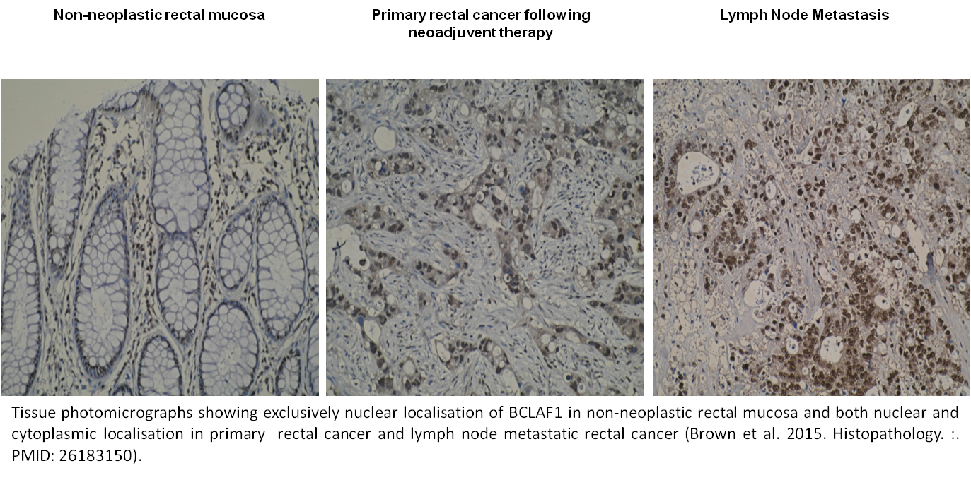 Tissue photomicrographs showing exclusively nuclear localisation of BCLAF1 in non-neoplastic rectal mucosa and both nuclear and cytoplasmic localisation in primary  rectal cancer and lymph node metastatic rectal cancer (Brown et al. 2015. Histopathology. :. PMID: 26183150).