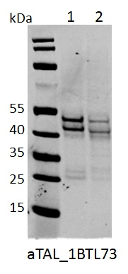 Western blot analyses of 100µg nuclear extract from the T-ALL cell lines