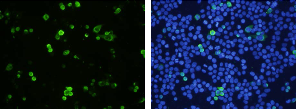 Immunofluorescence was performed on 293T cells (transfected) using anti-SCL [1E6]. DAPI (nucleus) counterstain is shown in blue.