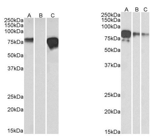 Left Panel: Antibody (2 µg/ml) staining of HEK293 spiked (A) and unspiked (B) with 5 ng multitag protein (35 µg protein in RIPA buffer). Lane C contains 25 ng purified multitag protein as positive control. Right Panel: Antibody (1 µg/ml) staining of Multitag protein at 25 ng (A), 10 ng (B) and 5 ng (C) amounts. For both, primary incubation was 1 hour. Detected by chemiluminescence.