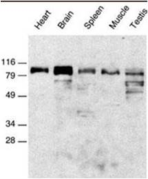 Western blot of reduced glycoproteins from the indicated tissues which were probed with Anti-ADAM15 antibody.